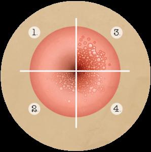humaan papillomavirus behandeling