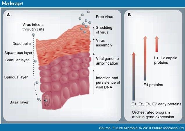 human papillomavirus medscape cancer san hormonal