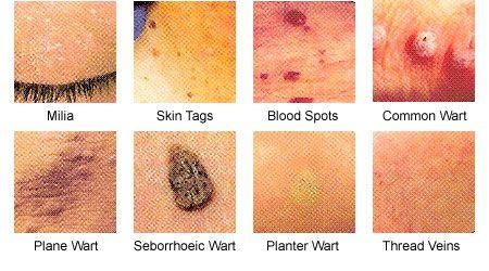 human papillomavirus warts on face cancer de colon ultimos dias