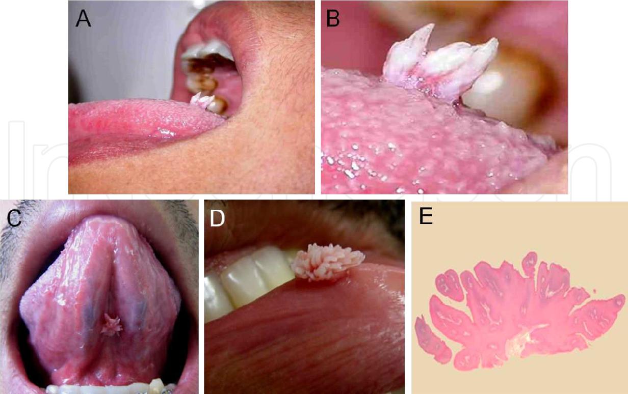 scabia la om traitement pour le papillomavirus chez lhomme