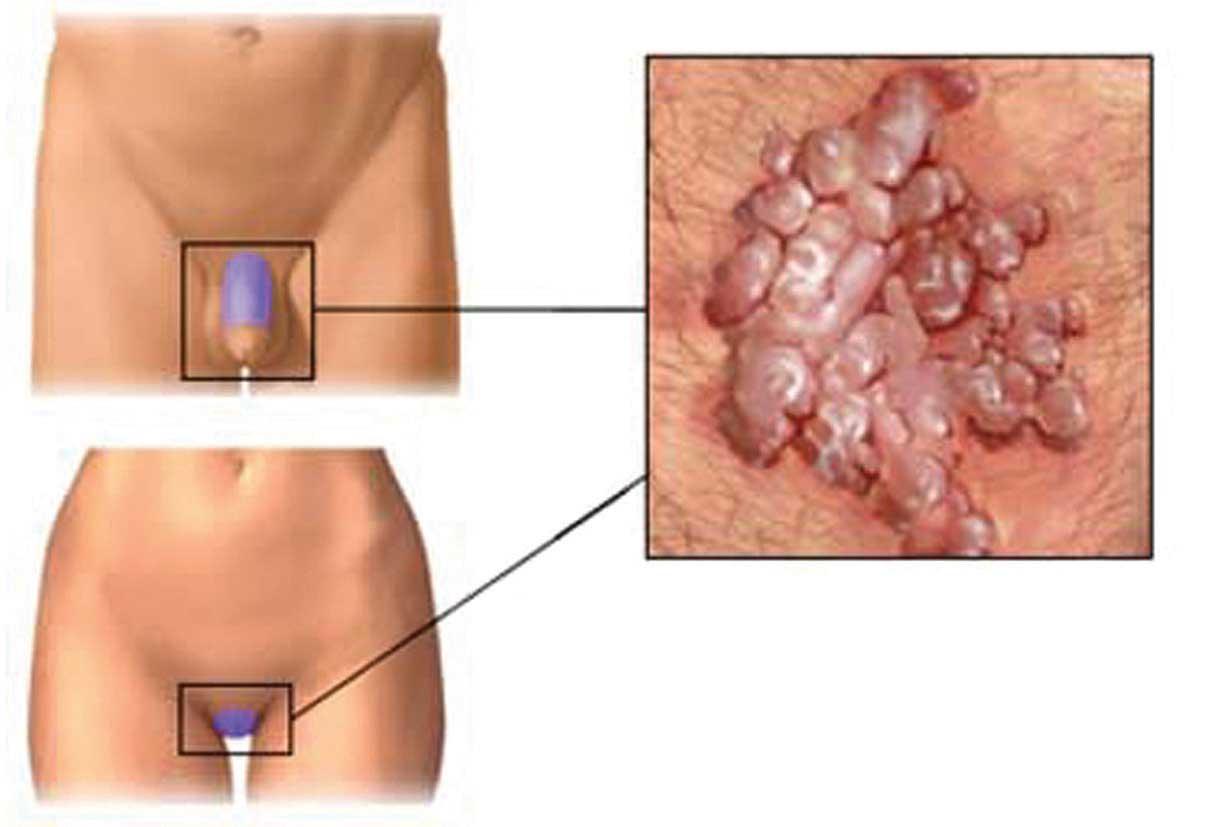 il papilloma virus negli uomini anemie 6