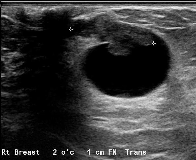 intraductal papilloma sonography