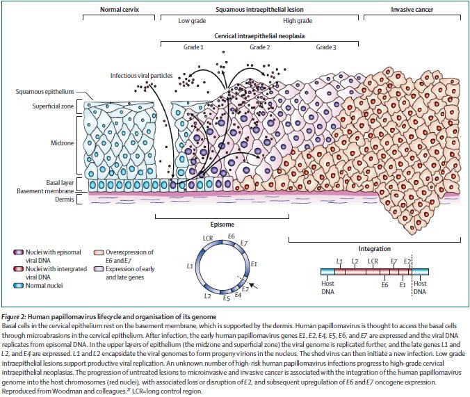 is hpv virus cancer cancerul mamar factori de risc