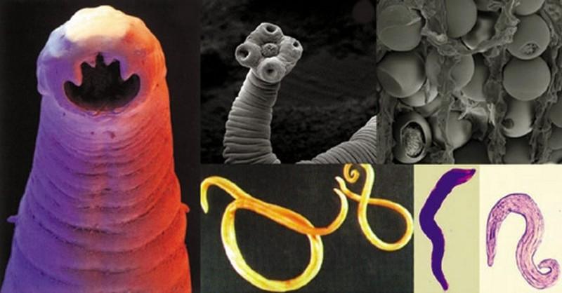 mame v tele parazity hpv virus symptoms in females