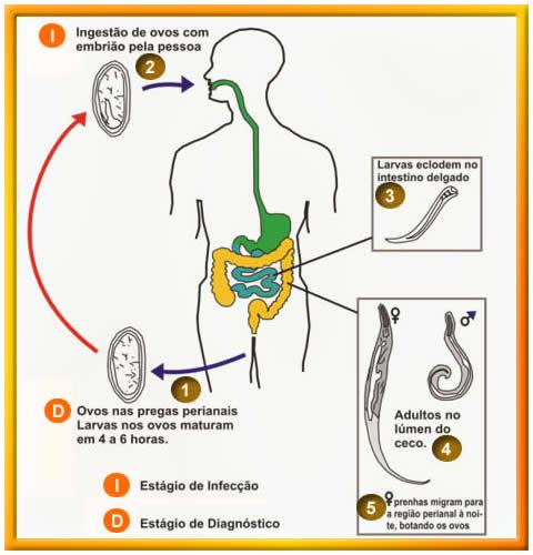 o que e enterobiose ou oxiurose albendazol oxiuri ase