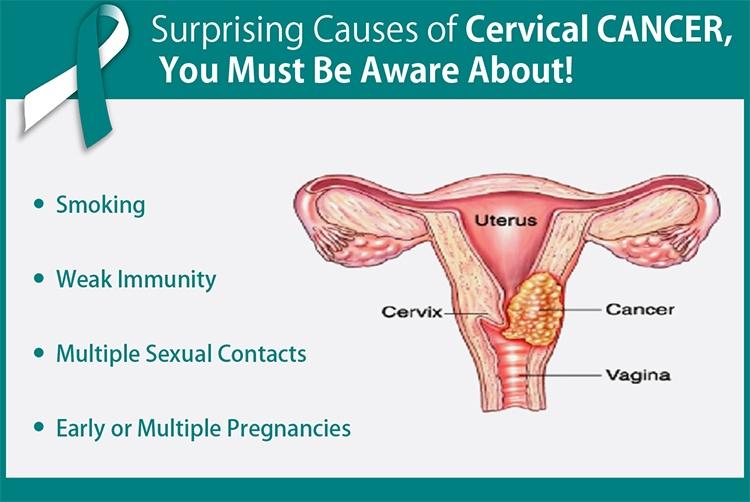 ovarian cancer quora cancer mamar t4