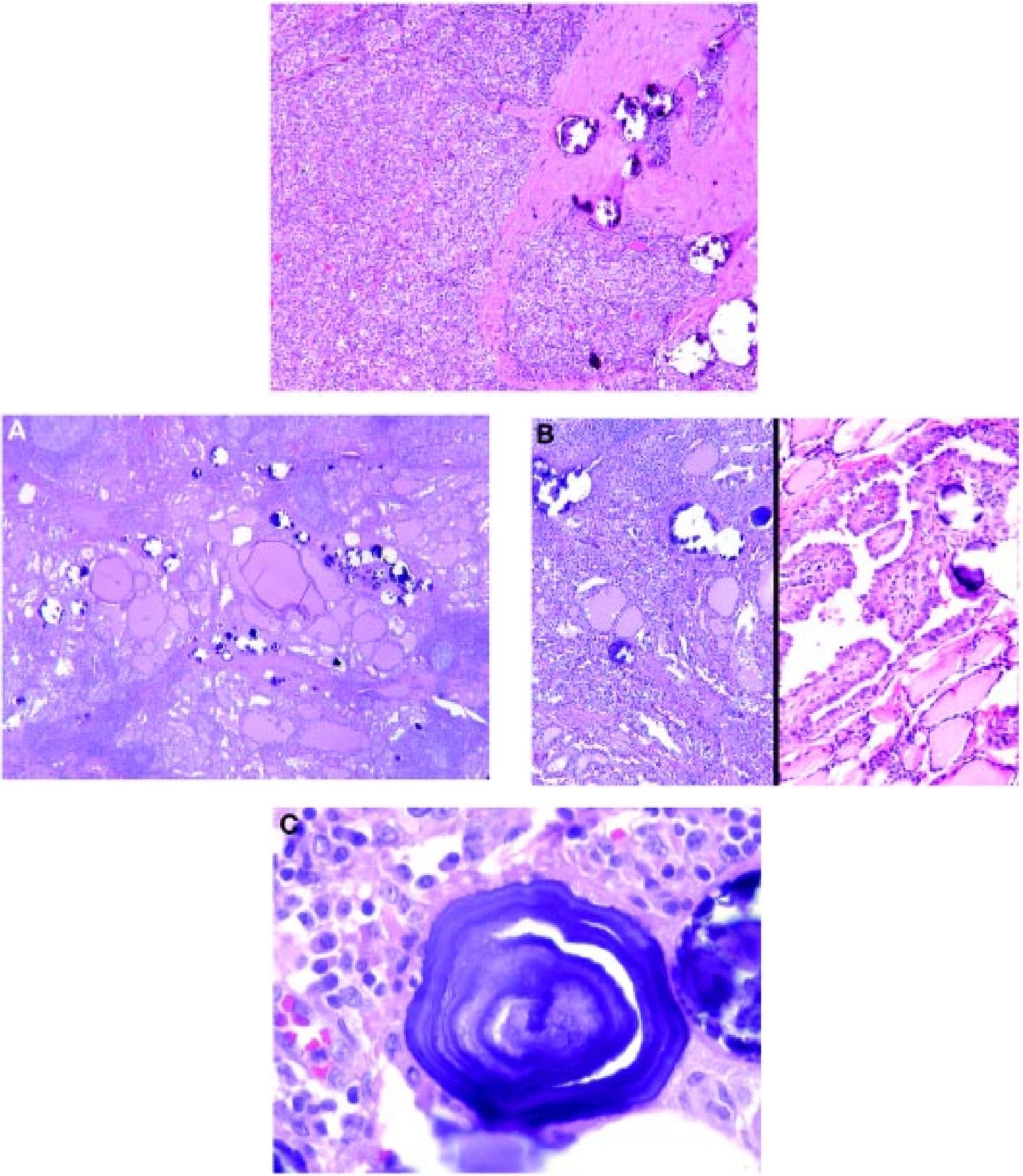 papillary thyroid cancer diffuse sclerosing variant