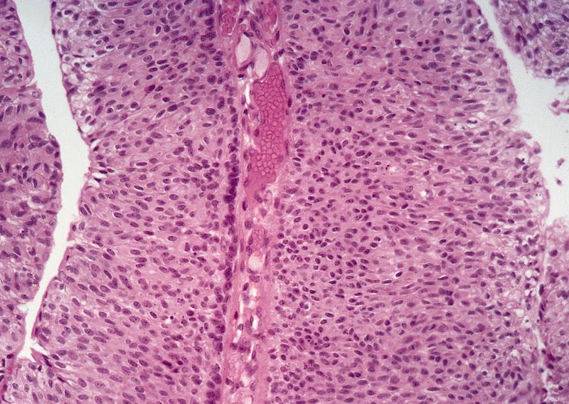 paraziti intestinali simptome la copii hpv cancer prevention vaccine