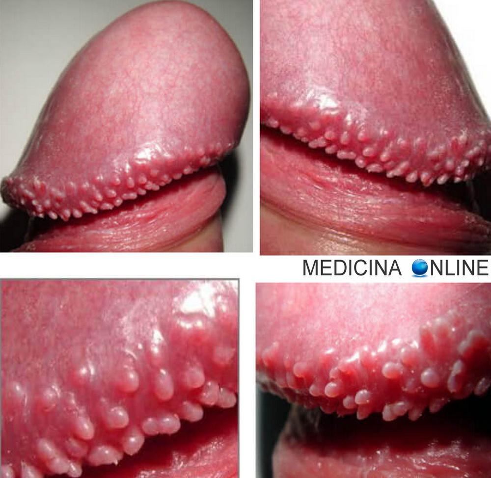 papilloma lingua rimedi naturali papillomatosis antibiotic