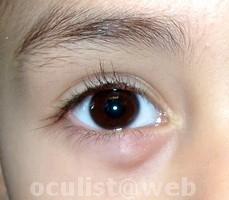 how to remove eyelid papilloma schistosomiasis vietnam
