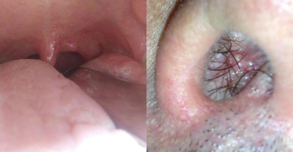 inverted papilloma nasal cancer plamani tuse