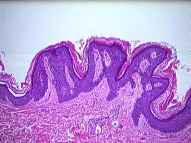 papillomatosis dermatology)