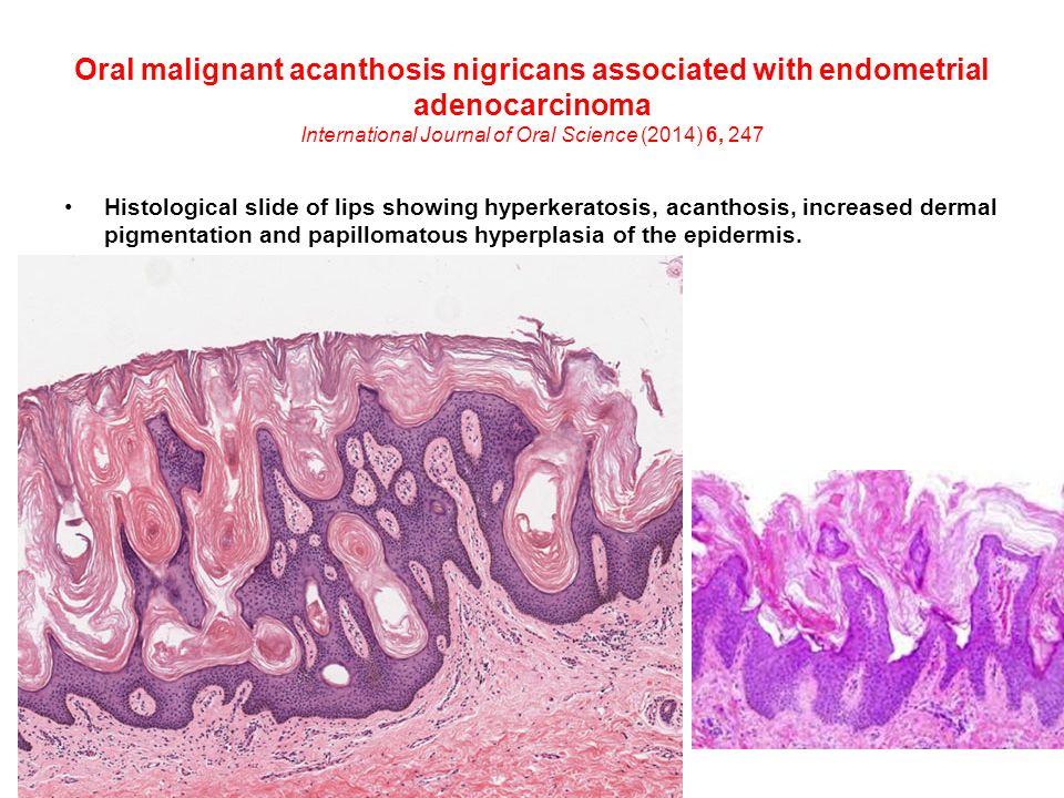 Papillomatous epidermal