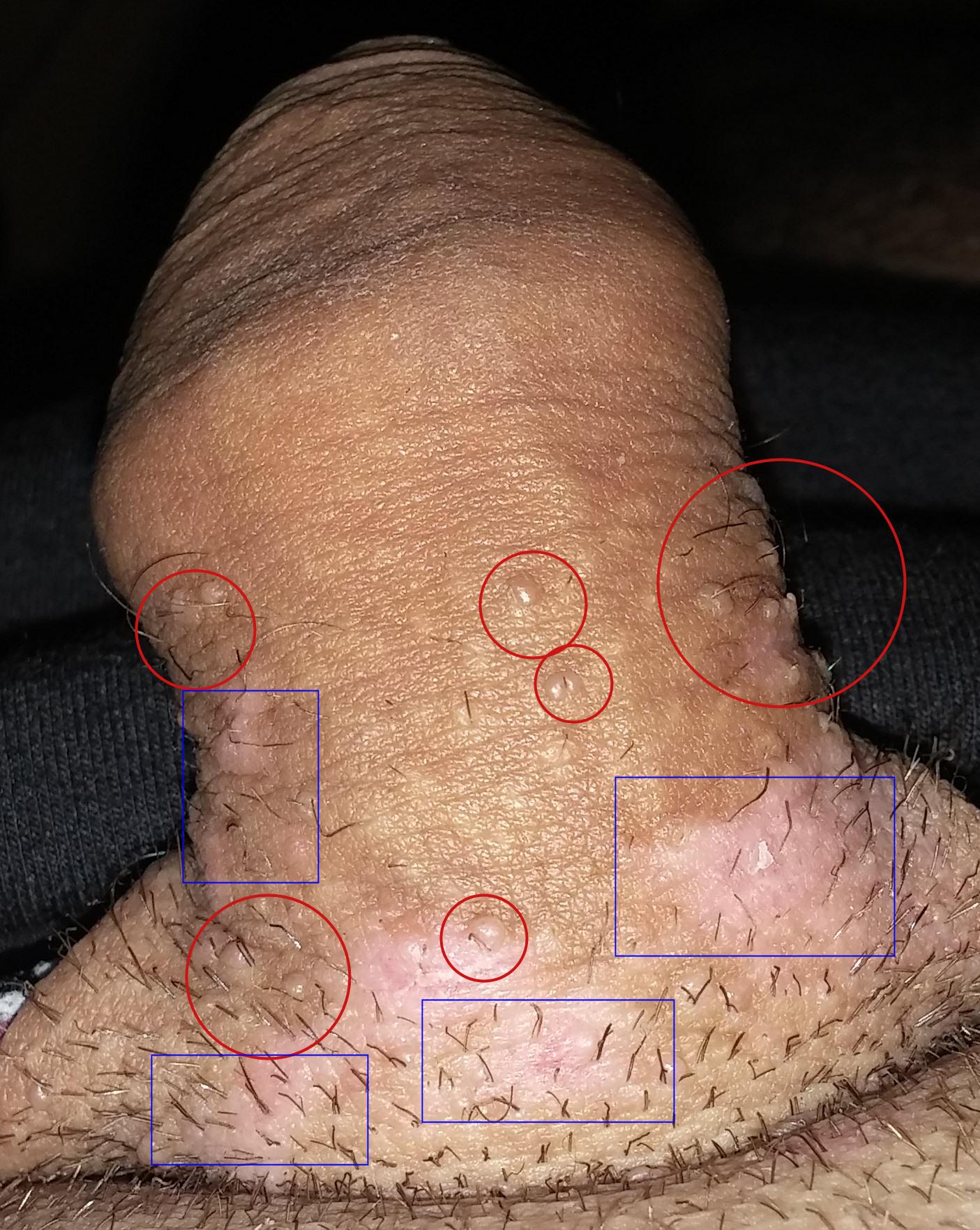 papillomavirus chez les hommes