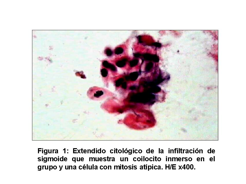 papiloma carcinoma epidermoide vaccin papillomavirus chez les garcons