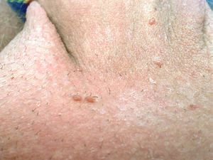 confluent and reticulated papillomatosis itchy hpv tumore vescica