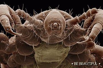 paraziti v ludskom tele paraziti intestinali alcool