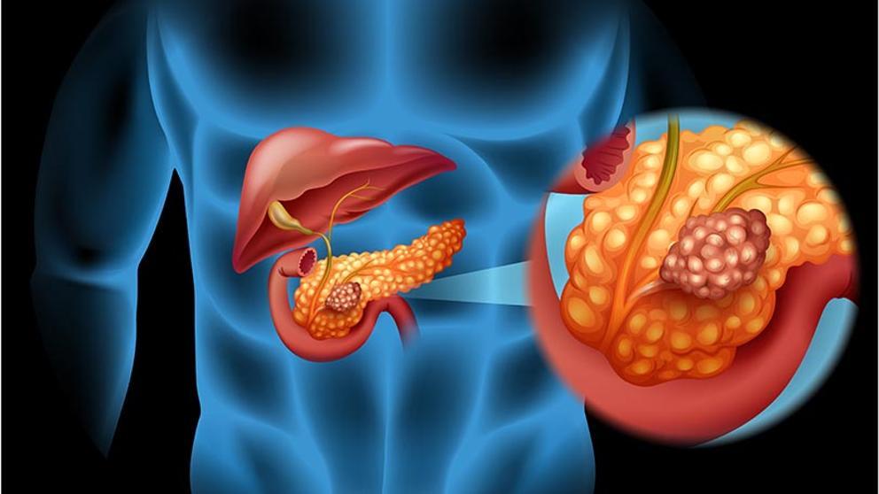 que es el cancer de colon y como se produce neuroendocrine cancer run