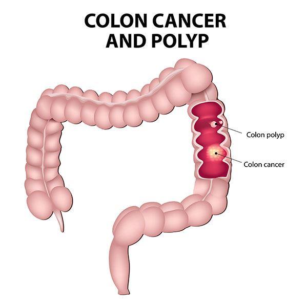 cancer de colon que comer