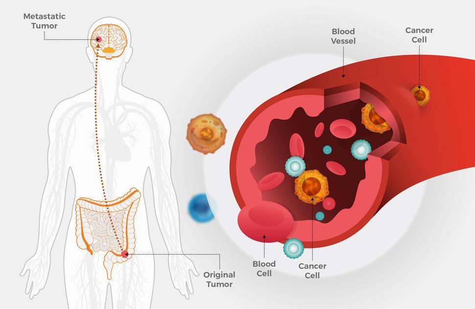 rectal cancer in colon cancer pulmonar dupa operatie