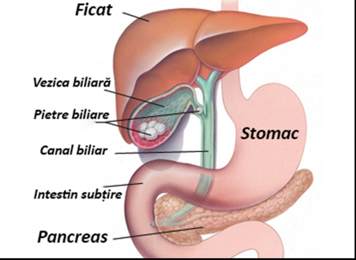 se poate opera cancerul la ficat hpv cancer in mouth