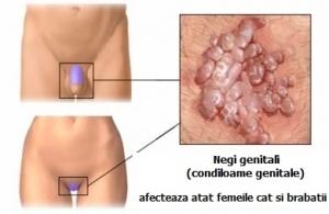 simptome virusul papiloma uman anemie acid folic