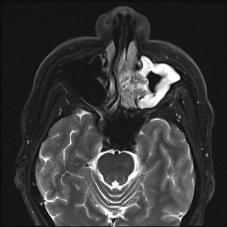 sinonasal papilloma mri virus del papiloma humano en hombres como se cura