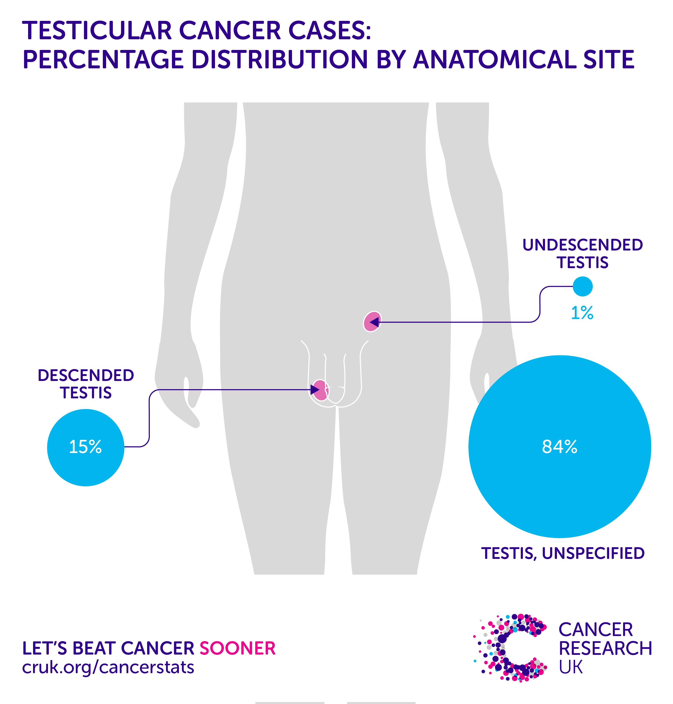 cancer la ficat transplant