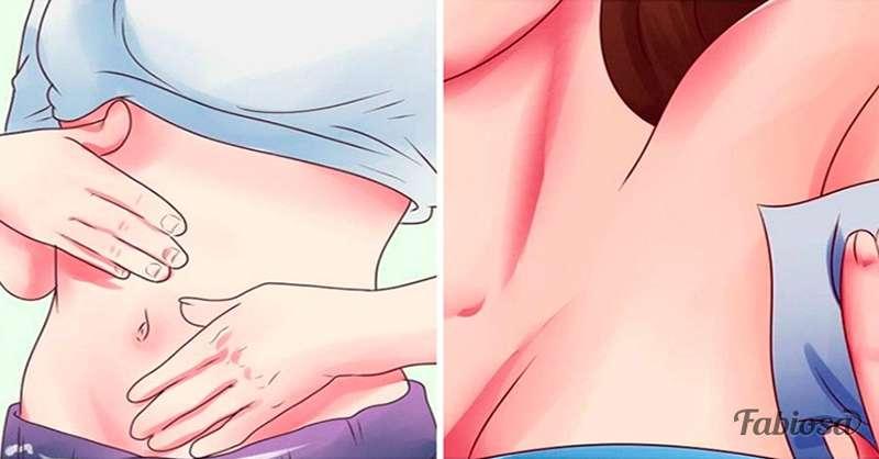 toxine foie symptomes oxiurose tratamento natural