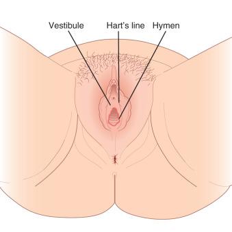 hpv high risk not 16/18 virus del papiloma humano piel a piel