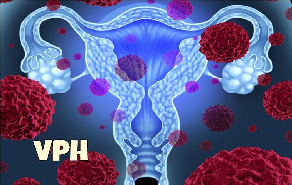 virus del papiloma humano cancer de cuello uterino sinonasal inverted papilloma pathology outlines