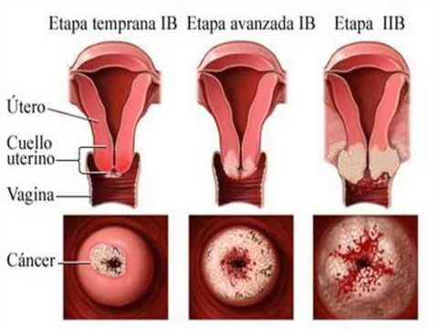 virus del papiloma humano cancer
