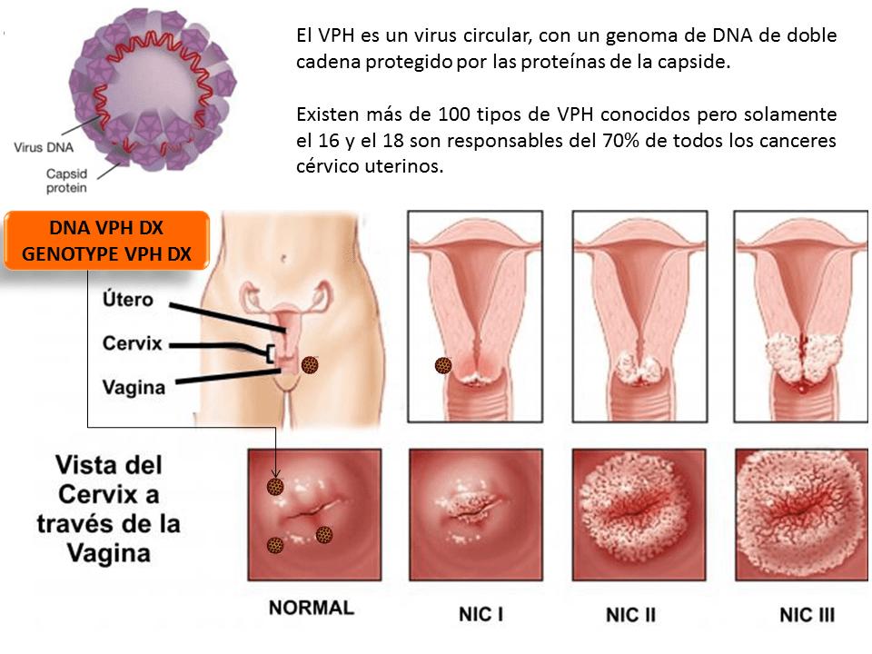 virus del papiloma tipo 6 y 11 kako se leci hpv virus