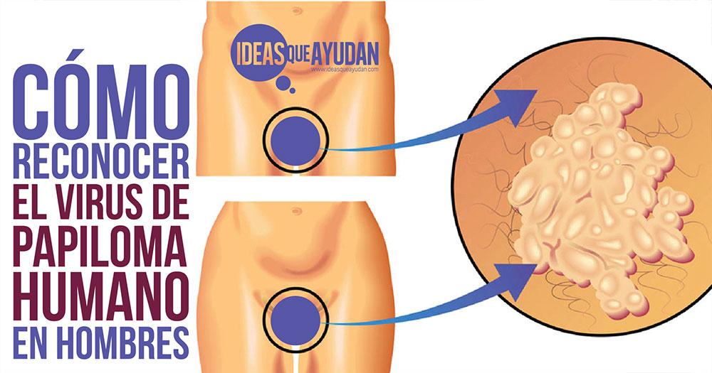 virus papiloma humano como detectar