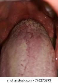 wart tongue white hpv skin disease