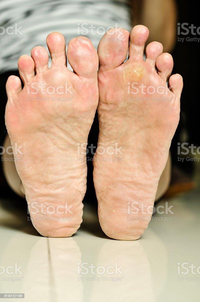 wart under foot treatment nikvorm copii
