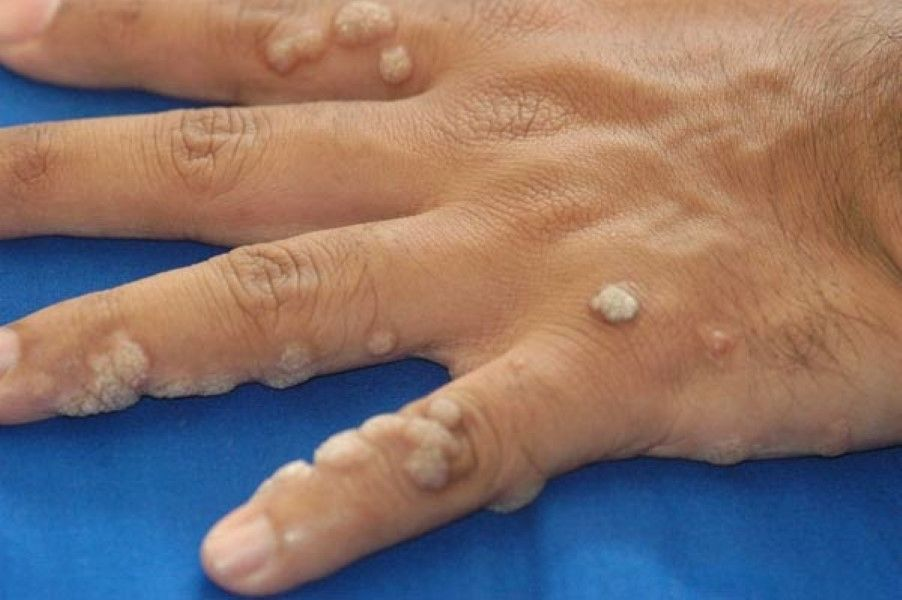 virus de papiloma humano pcr masculino uretral